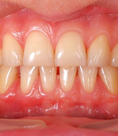 A person with mild gum disease.